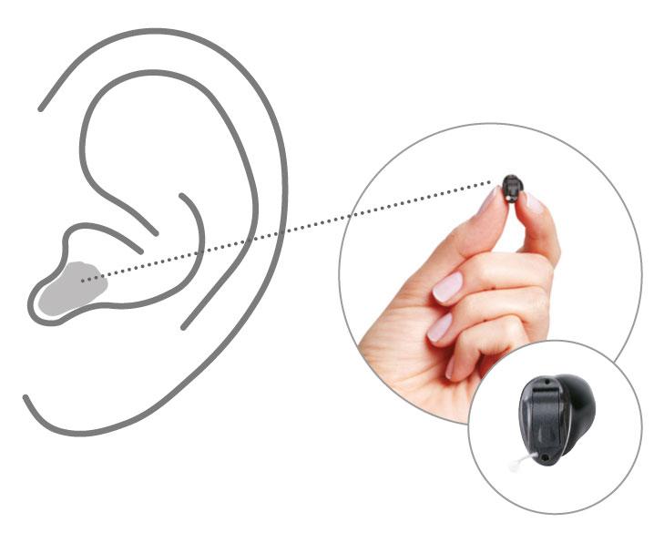 Hörgerät Im Ohr